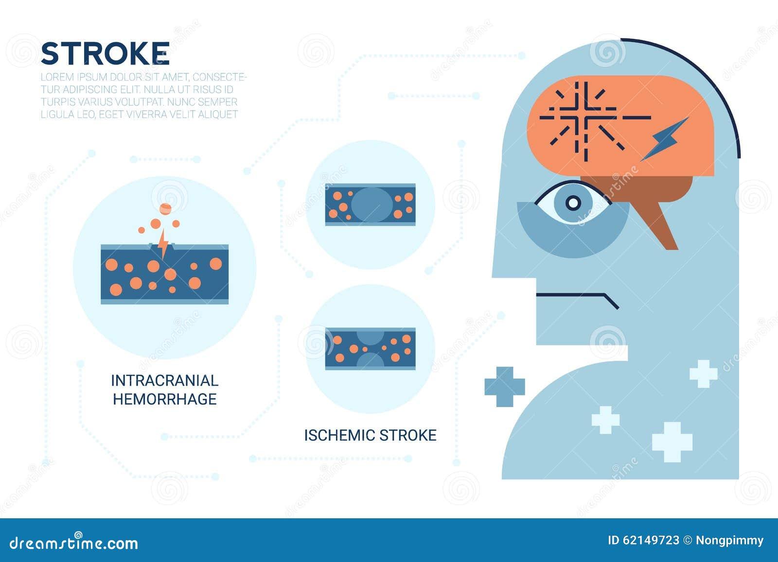 stroke brain disease stock vector illustration of ischemic 62149723