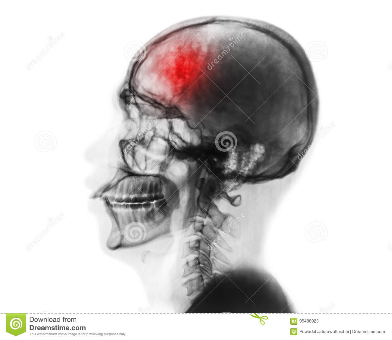 Stroke . Cerebrovascular accident . Film x-ray of human skull and cervical spine