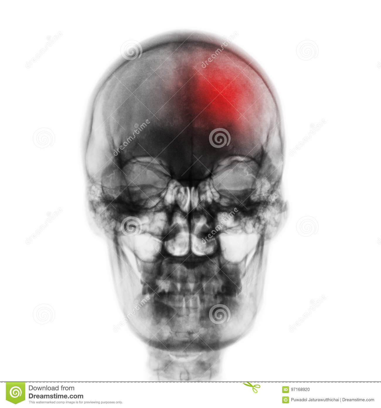 Stroke & x28; Cerebrovascular accident & x29; . Film x-ray skull of human with red area . Front view