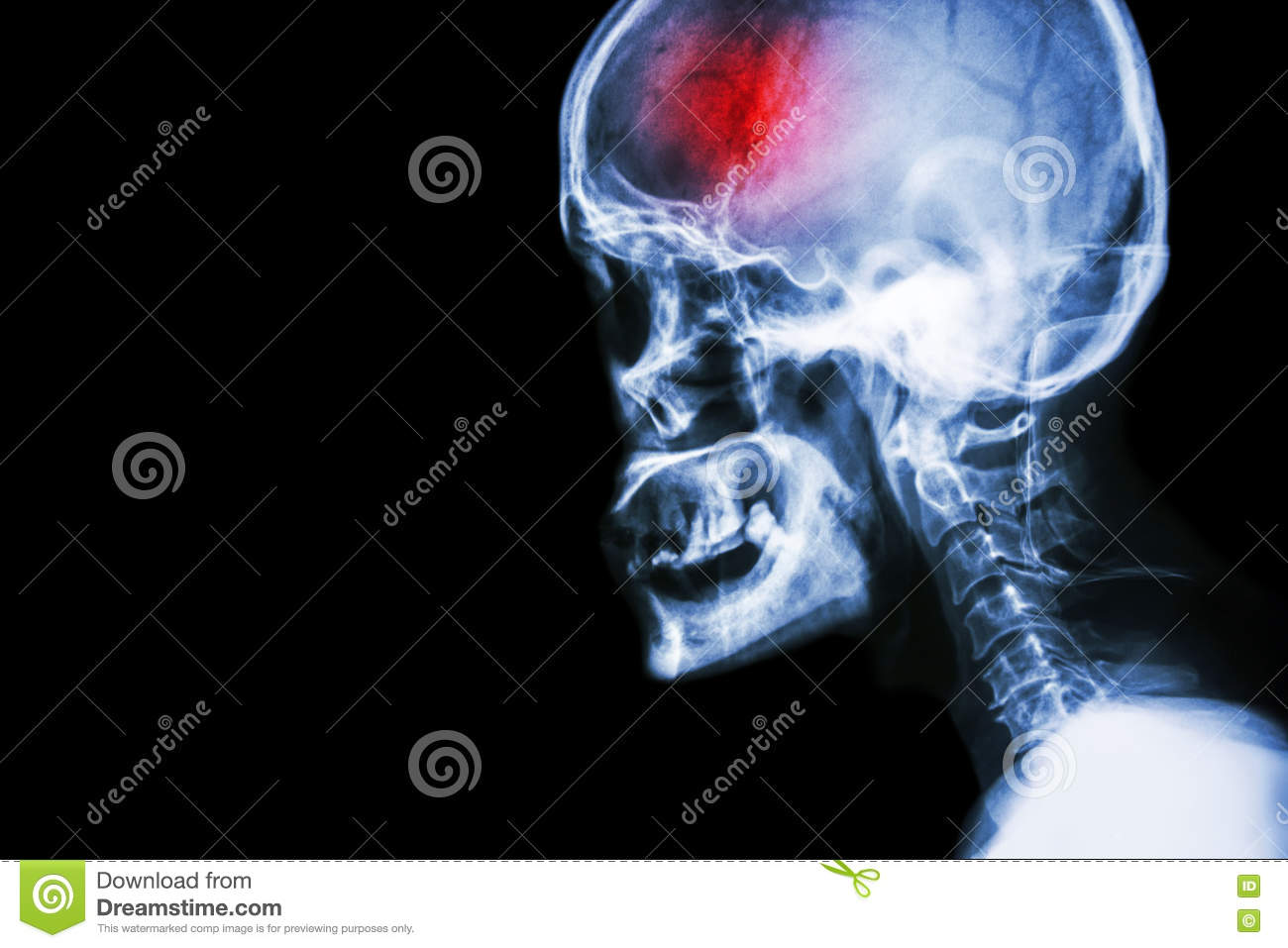 Stroke . film x-ray skull and cervical spine lateral view and stroke . cerebrovascular accident . blank area at left side .