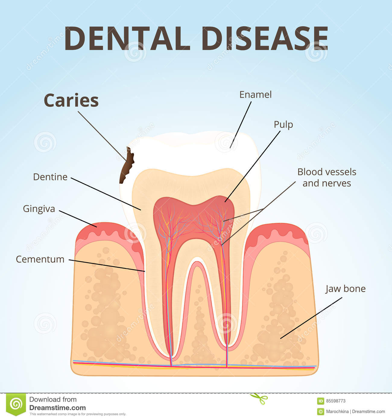 Structure of human teeth stock vector illustration of disease structure of human teeth disease diagram pooptronica Images