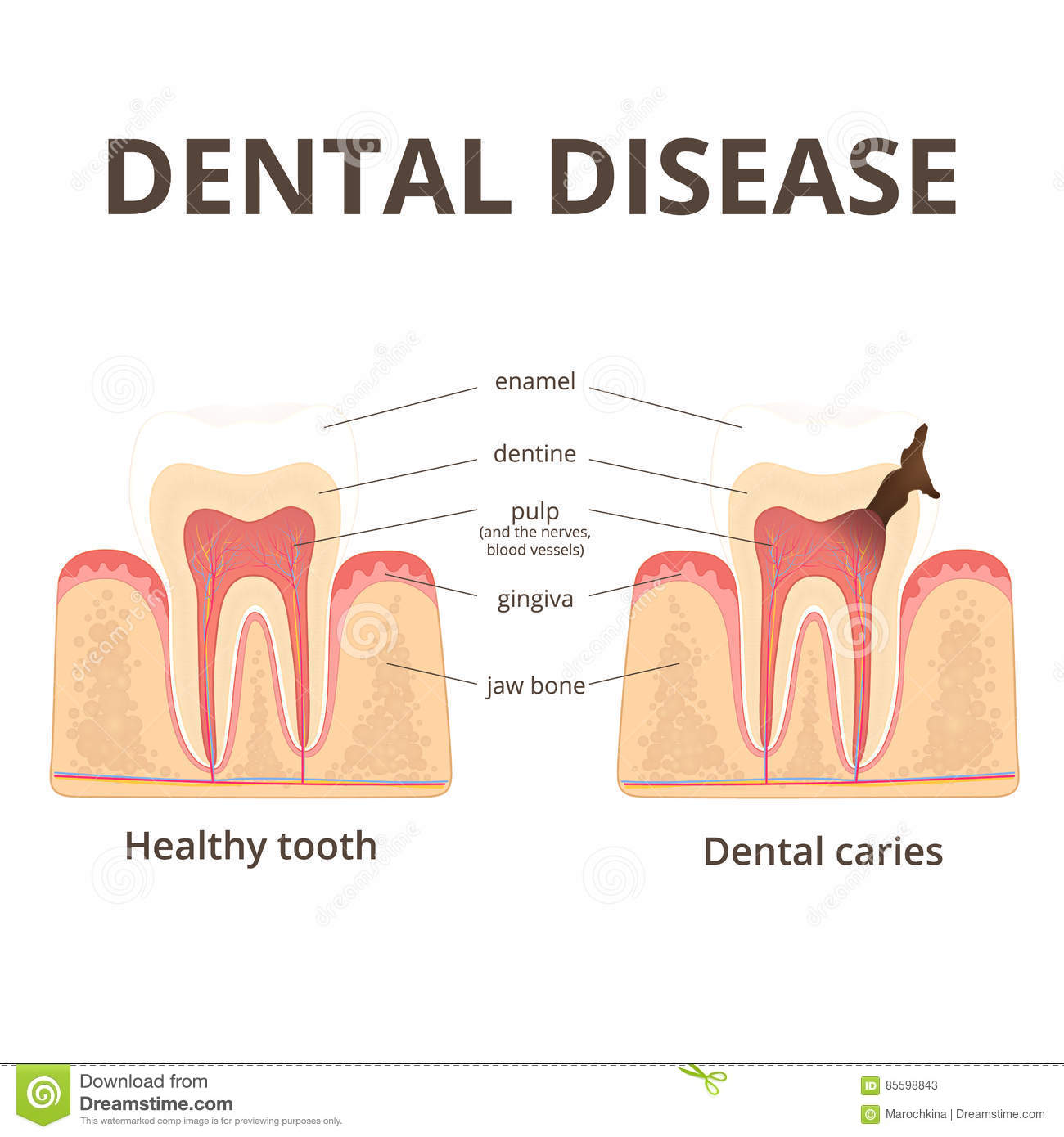 Structure of human teeth stock vector illustration of enamel 85598843 dental disease caries the stage tooth decay ccuart Gallery