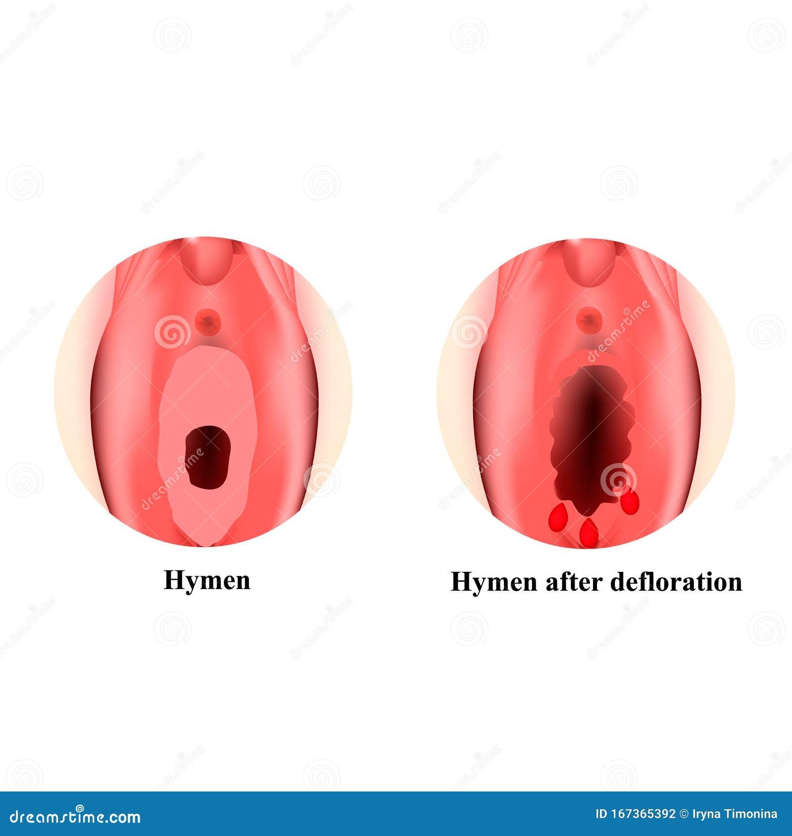 Hymen defloration video