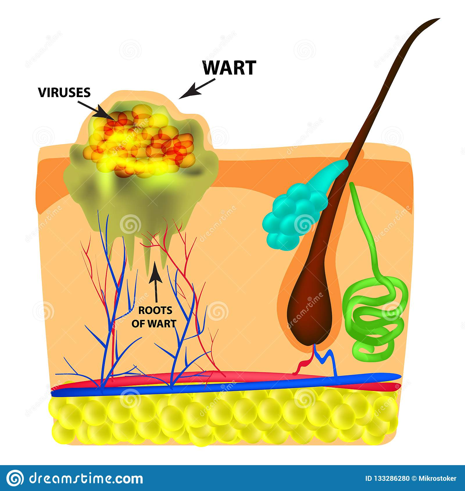 The Structure Of The Wart The Structure Of The Skin Infographics