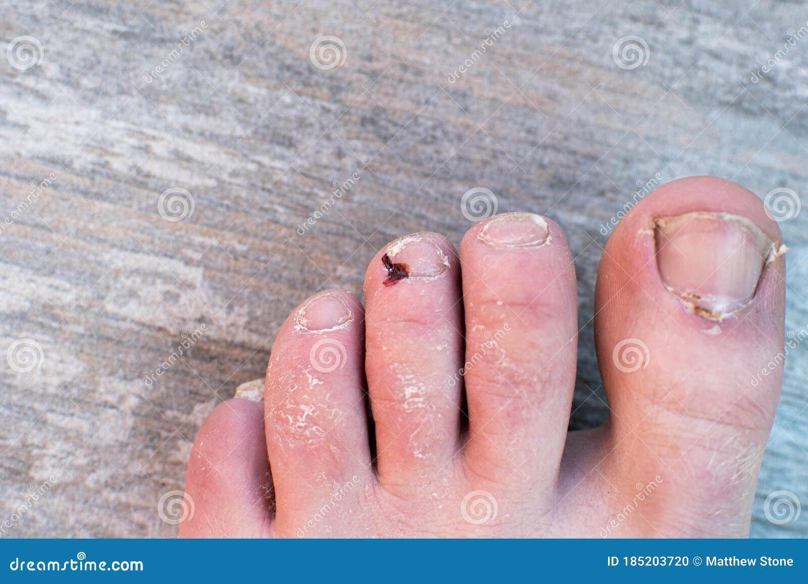 Purple stubbed toe Stubbed Toe,