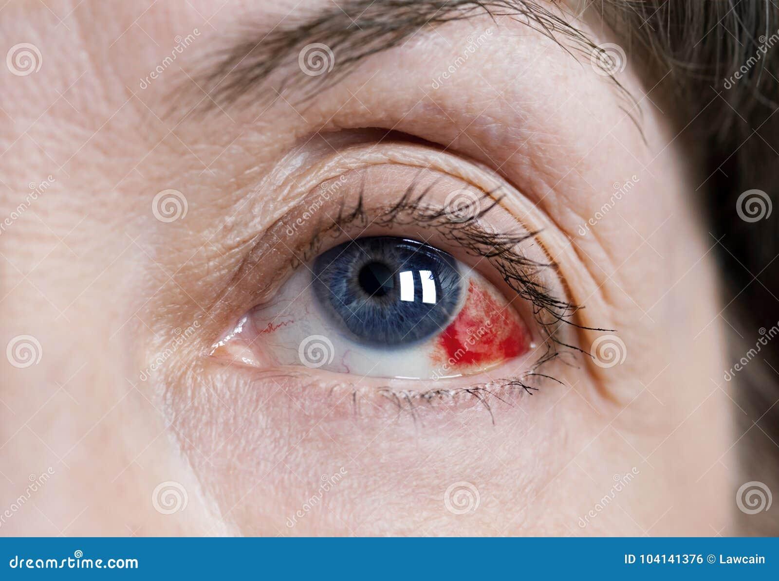 blod från ögat