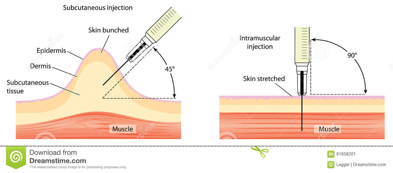 subcutaneous and intramuscular injection techniques stock vector