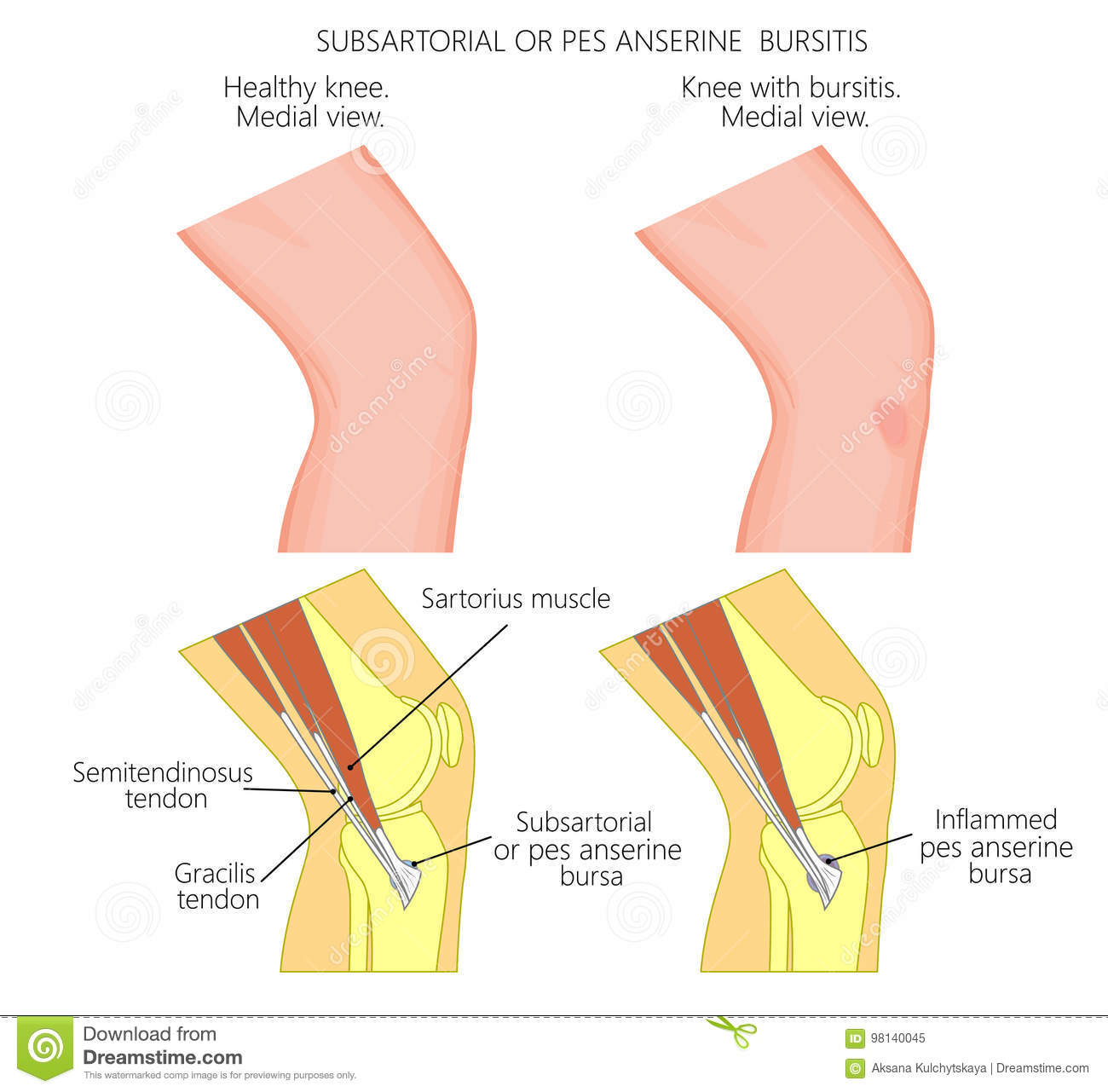 Subsartorial Or Pes Anserine Bursitis Of The Knee Stock Vector ...