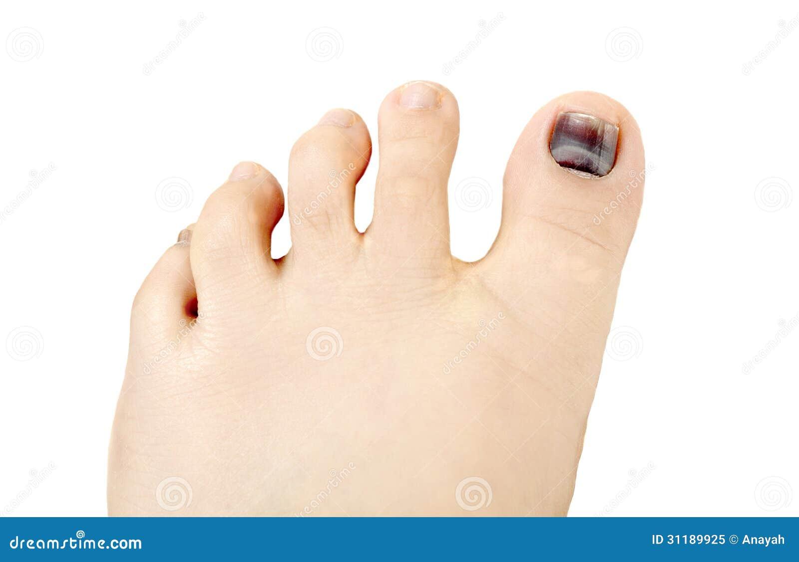 Subungual Hematoma Under Nail Stock Image - Image of pinched ...