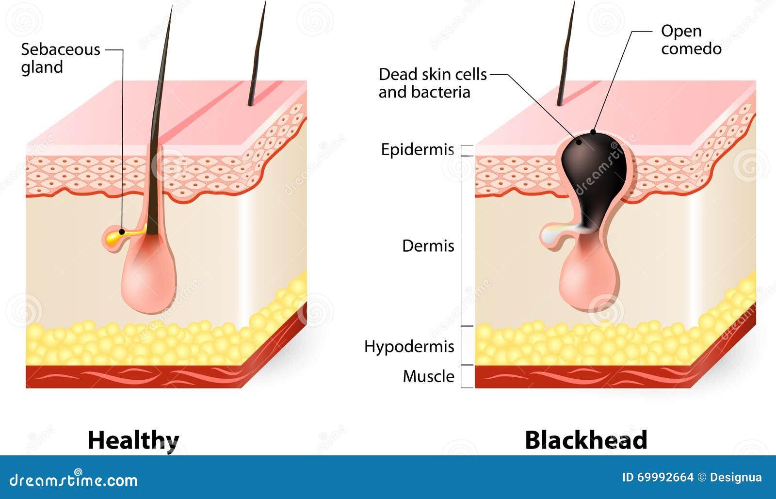 Sund hud och pormaskar