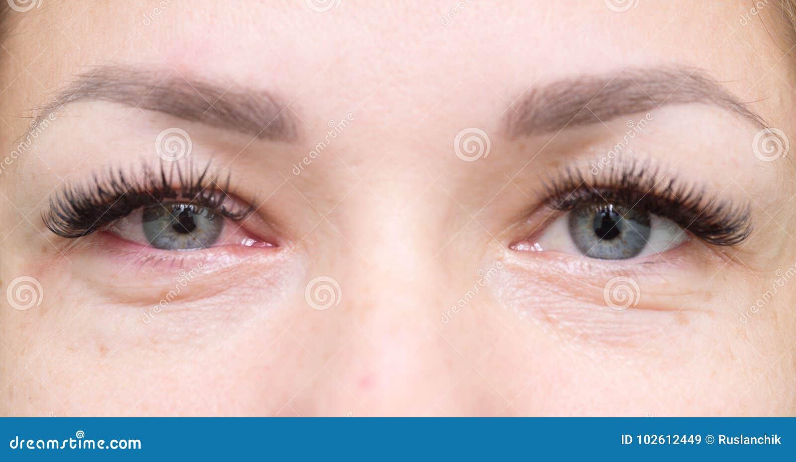 Sunda och irriterade ögon