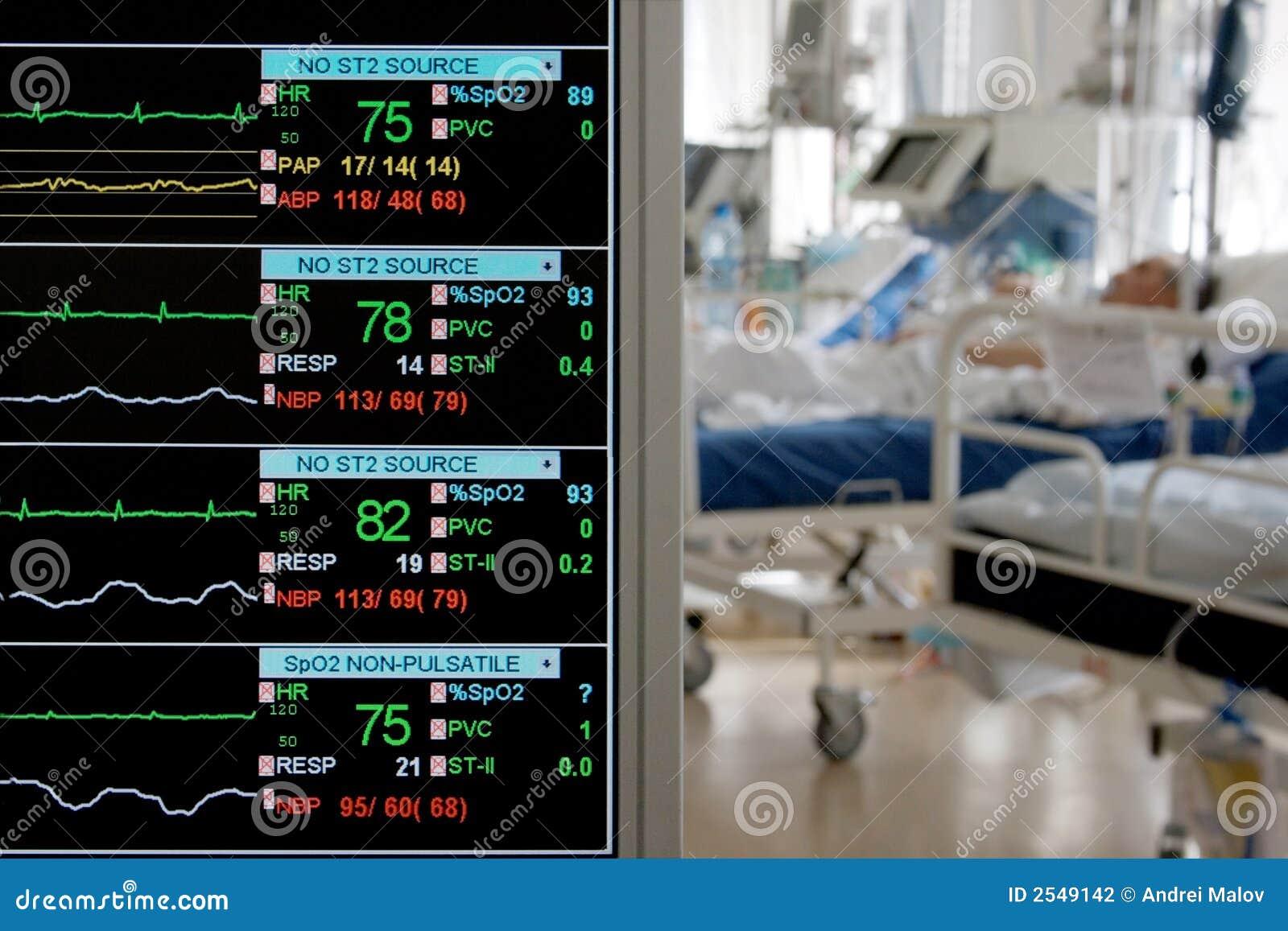 Supervisión en ICU