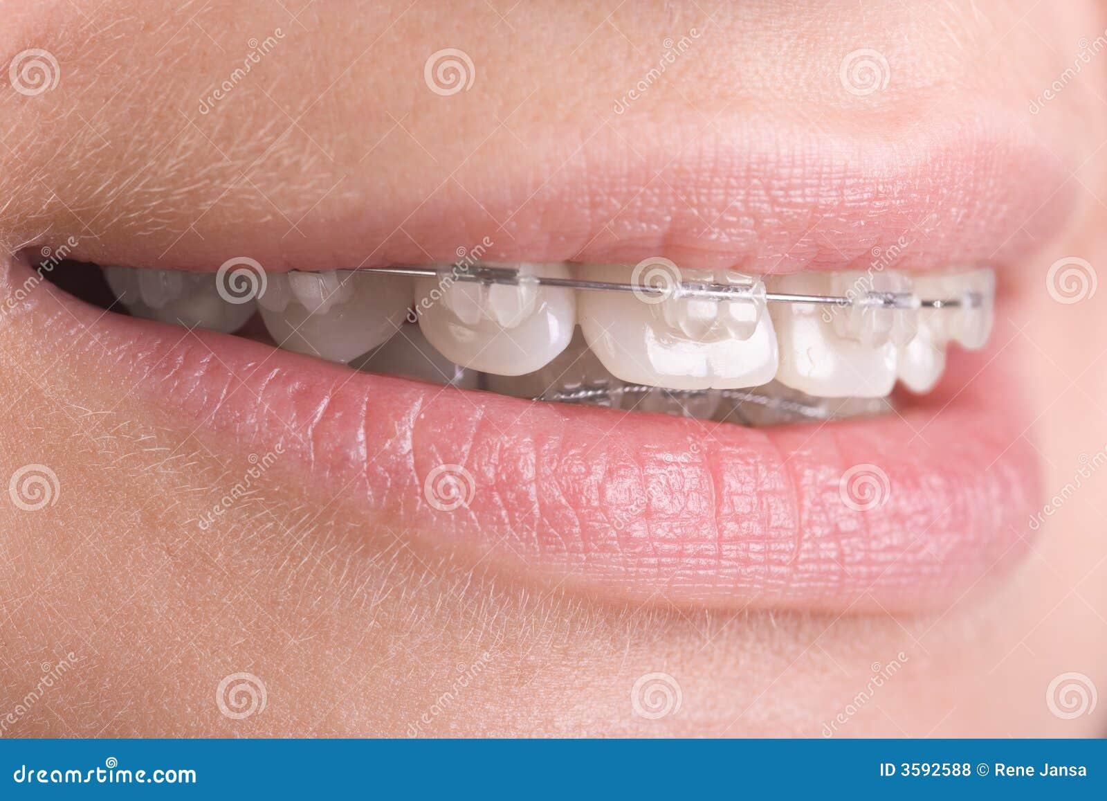 Supports sur des dents