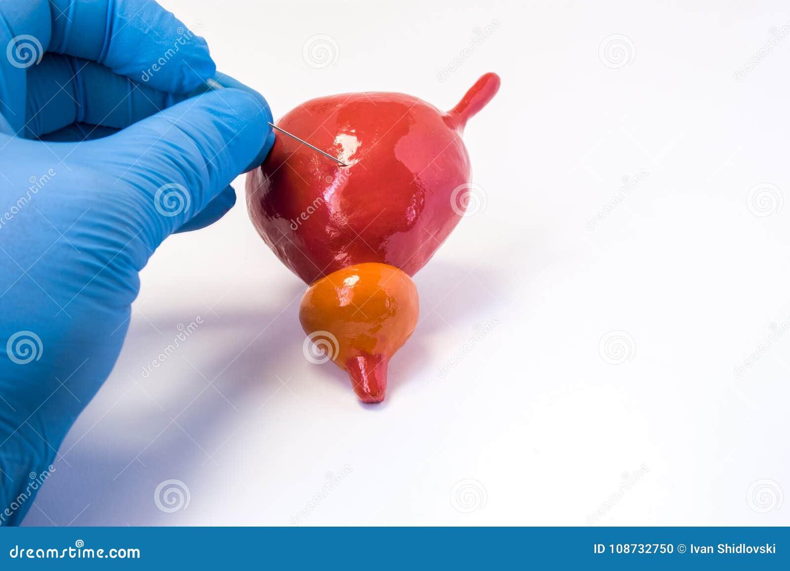 Suprapubic βιοψία οπής κύστεων ούρων ή cystoscopy διαδικασία Urologist η βελόνα εκμετάλλευσης και κάνει την οπή σωμάτων του ανατο