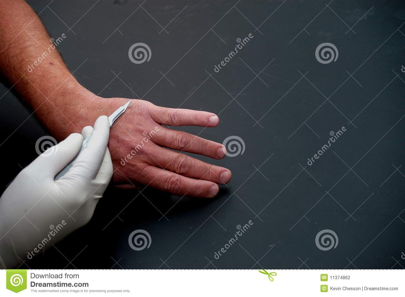 Surgery stock photo  Image of wart, tweezers, hand, operate - 11374862