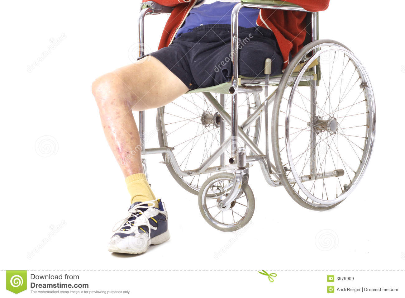 After Surgery Leg Amputation Royalty Free Stock Images