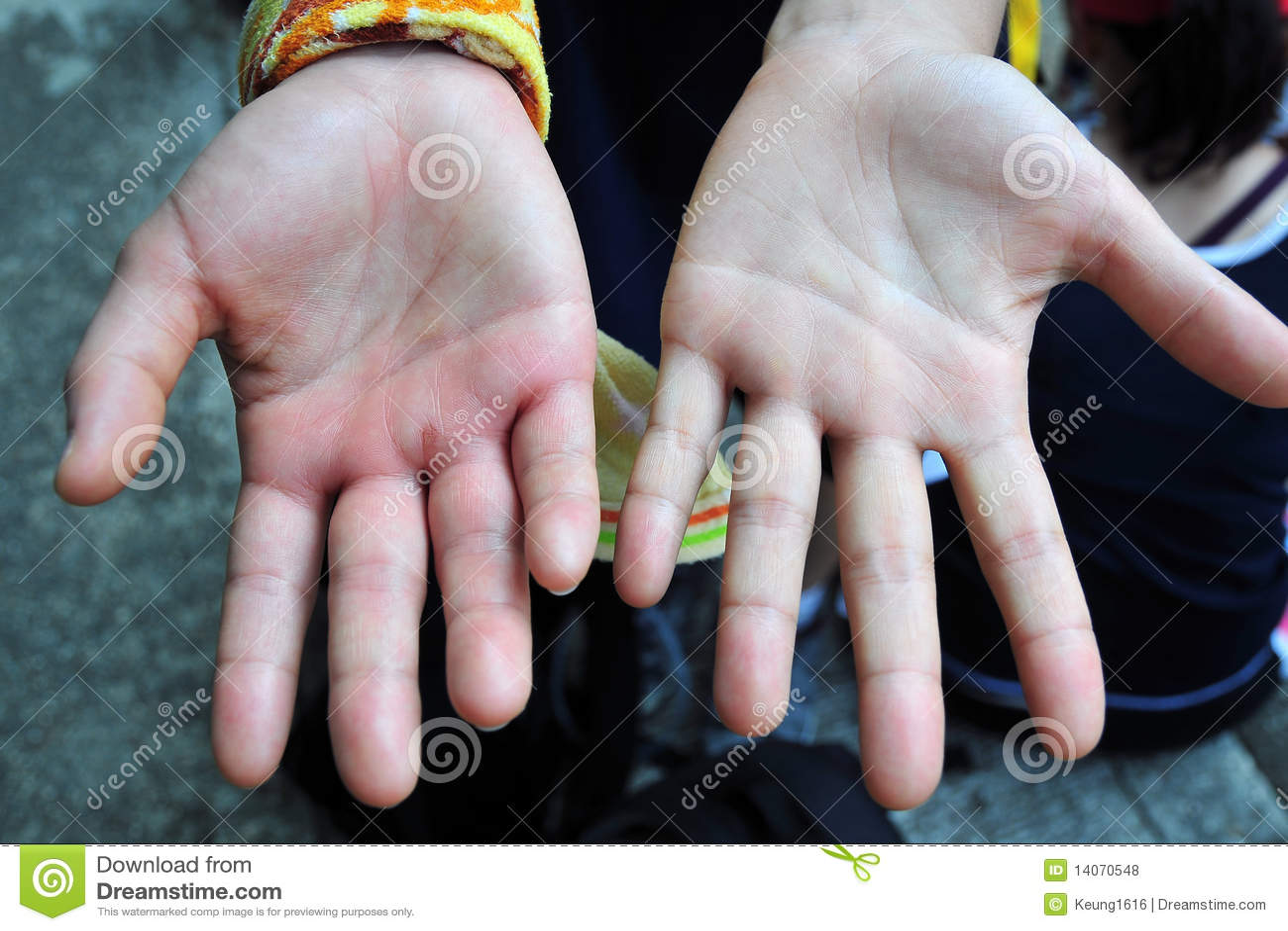 Swelling hand