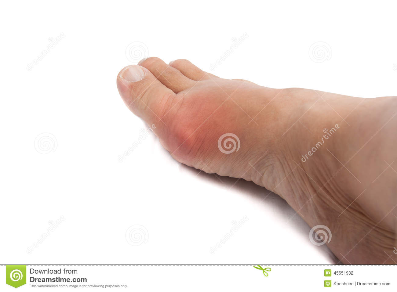 Swollen Foot With Gout Inflammation Stock Photo - Image ...