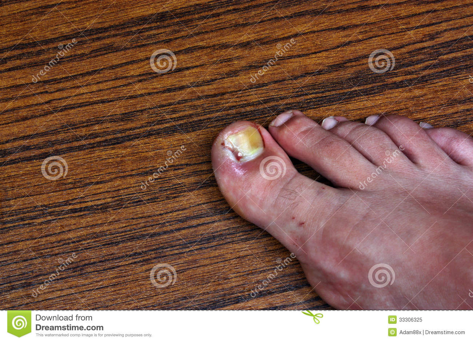 Swollen ingrown toe stock image  Image of cracked