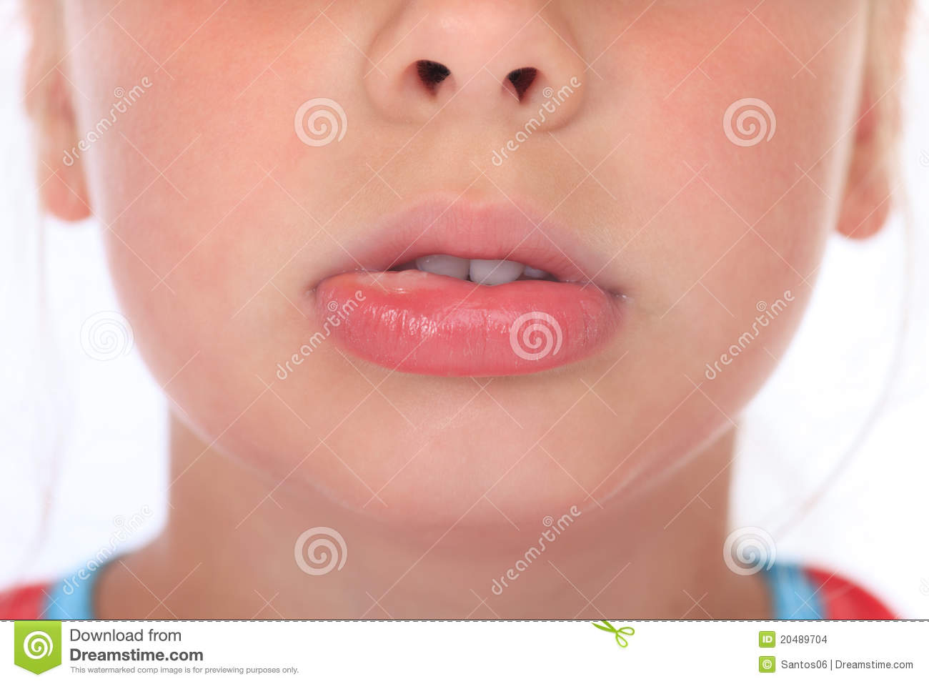 Swollen lip after wasp sting