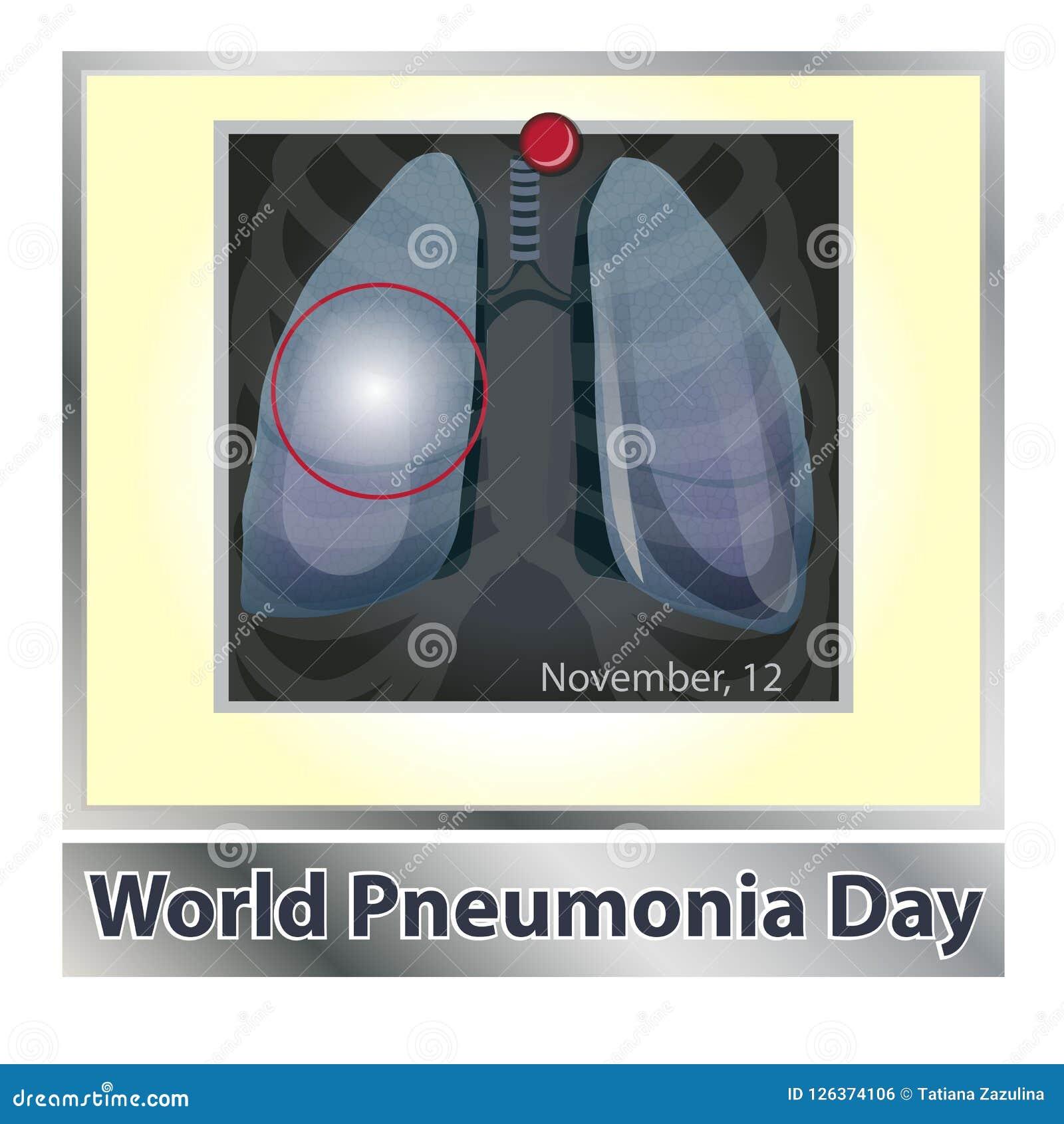 Symbollungenerkrankung atmung Atmungssystem Erkrankung der Atemwege - Krebsasthma, Tuberkulose, Pneumonie welt