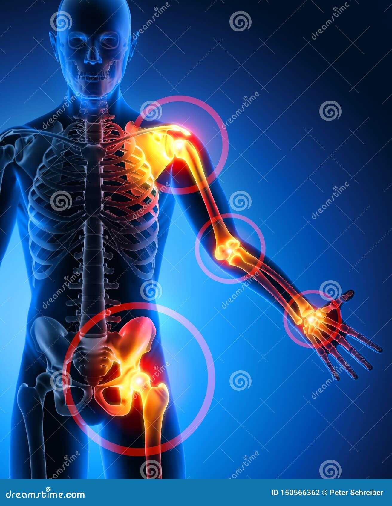 Symptômes lourds de douleurs articulaires d homme