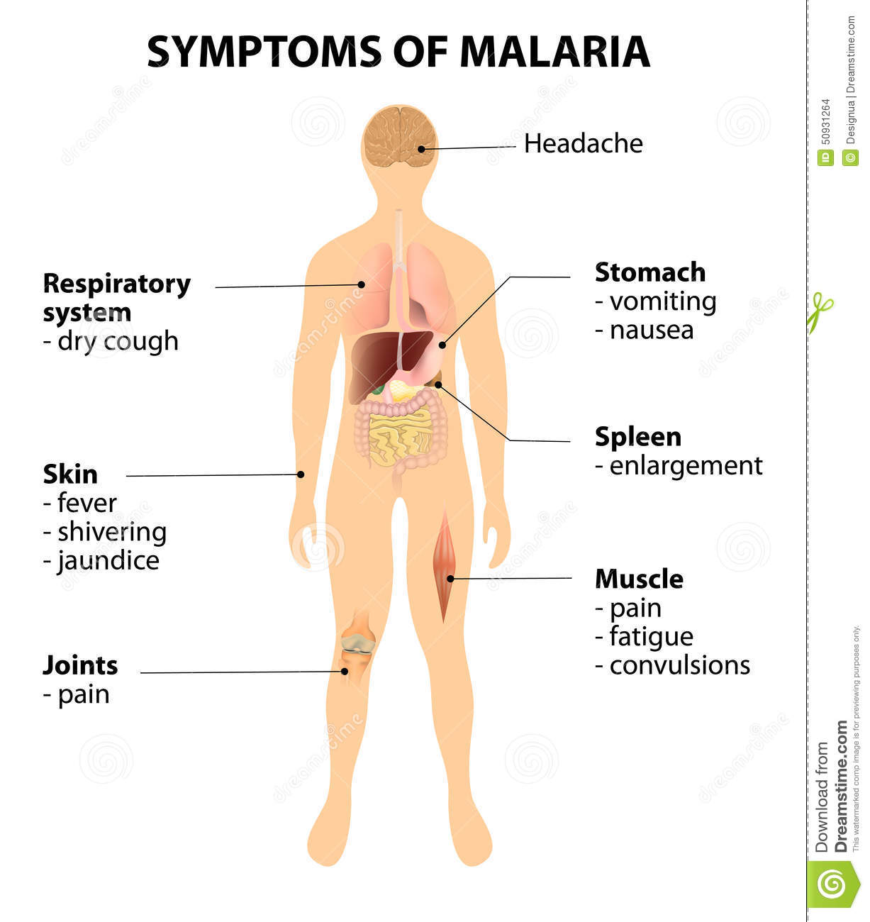symptoms and treatment of malaria Malaria is a life-threatening mosquito-borne blood disease caused by a plasmodium parasite it is transmitted to humans through the bite of the anopheles mosquito once an infected mosquito bites a human, the parasites multiply in the host's liver before infecting and destroying red blood cells.