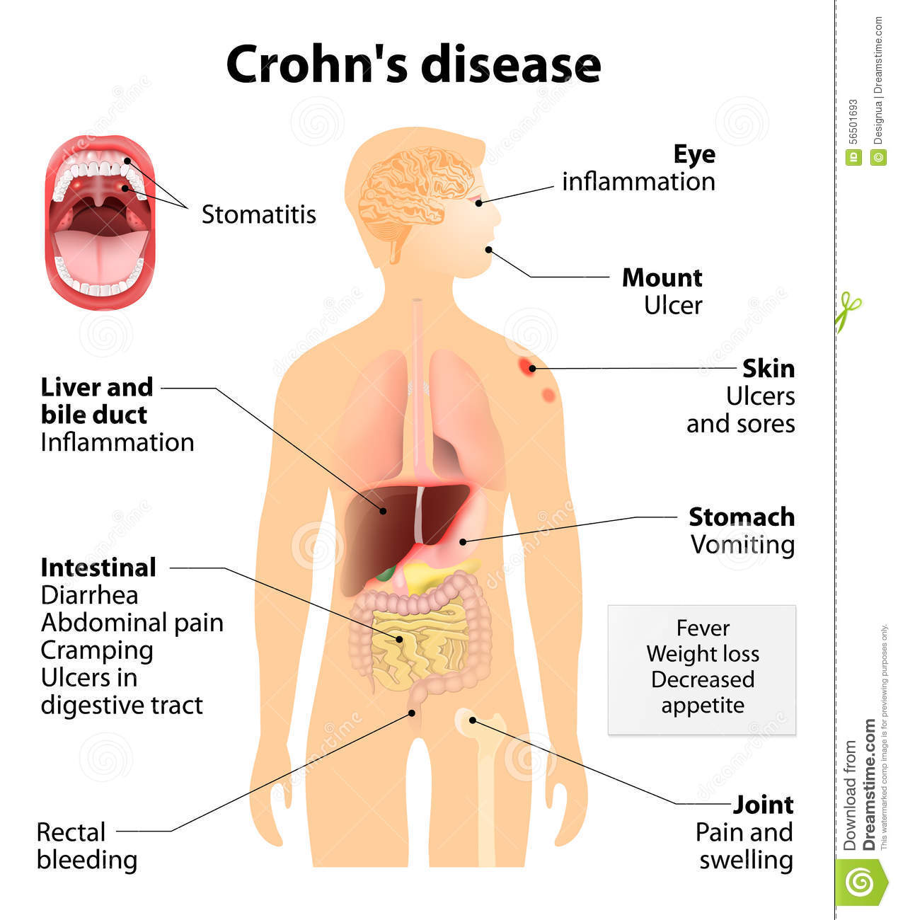 the common complications of crohns diseases 2018-07-15 crohn's disease vs ulcerative colitis nclex review  (more common in crohn's disease than ulcerative colitis  retrieved march 08, 2017, from  .