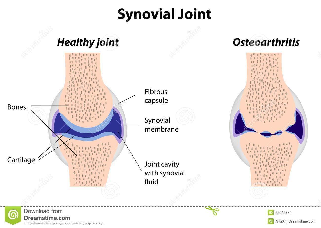 Synovial joint structure stock vector. Illustration of disease ...