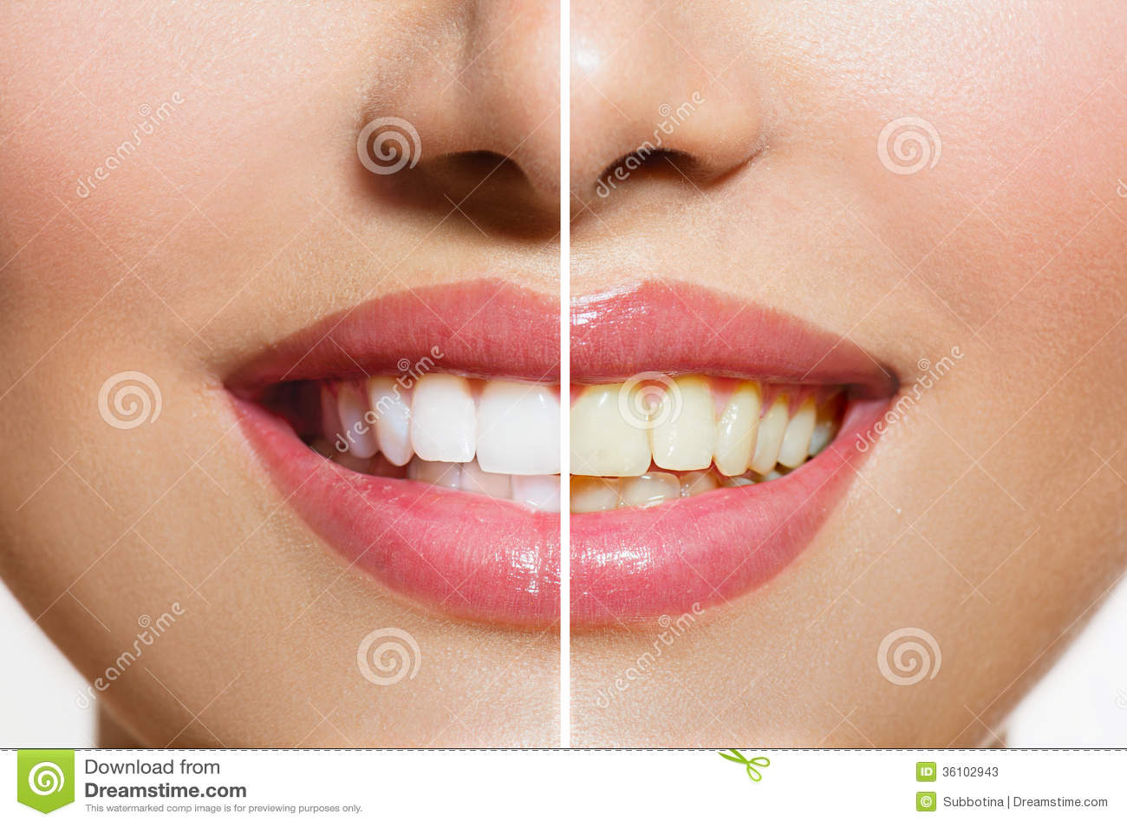 Tänder före och efter som gör vit