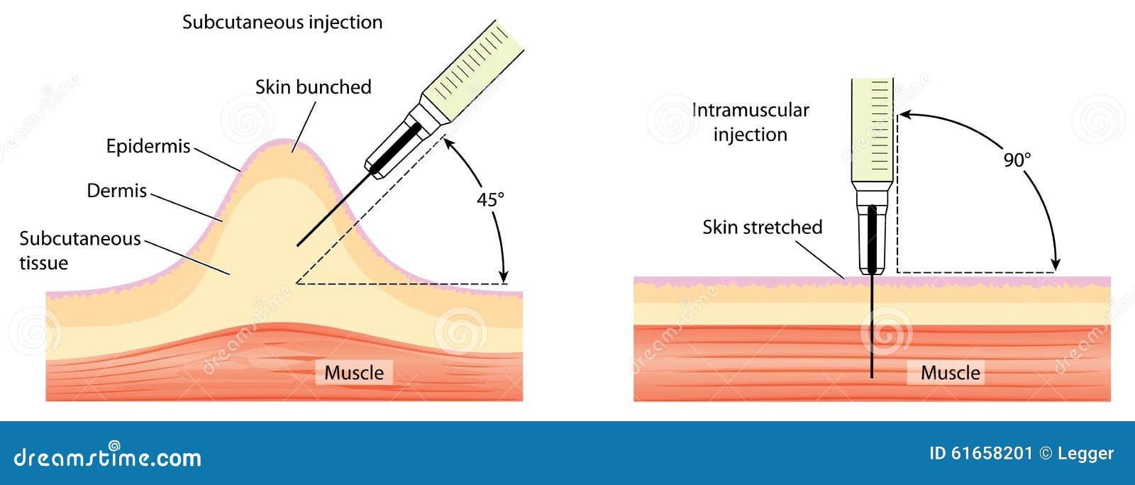 vacuna intramuscular subcutanea