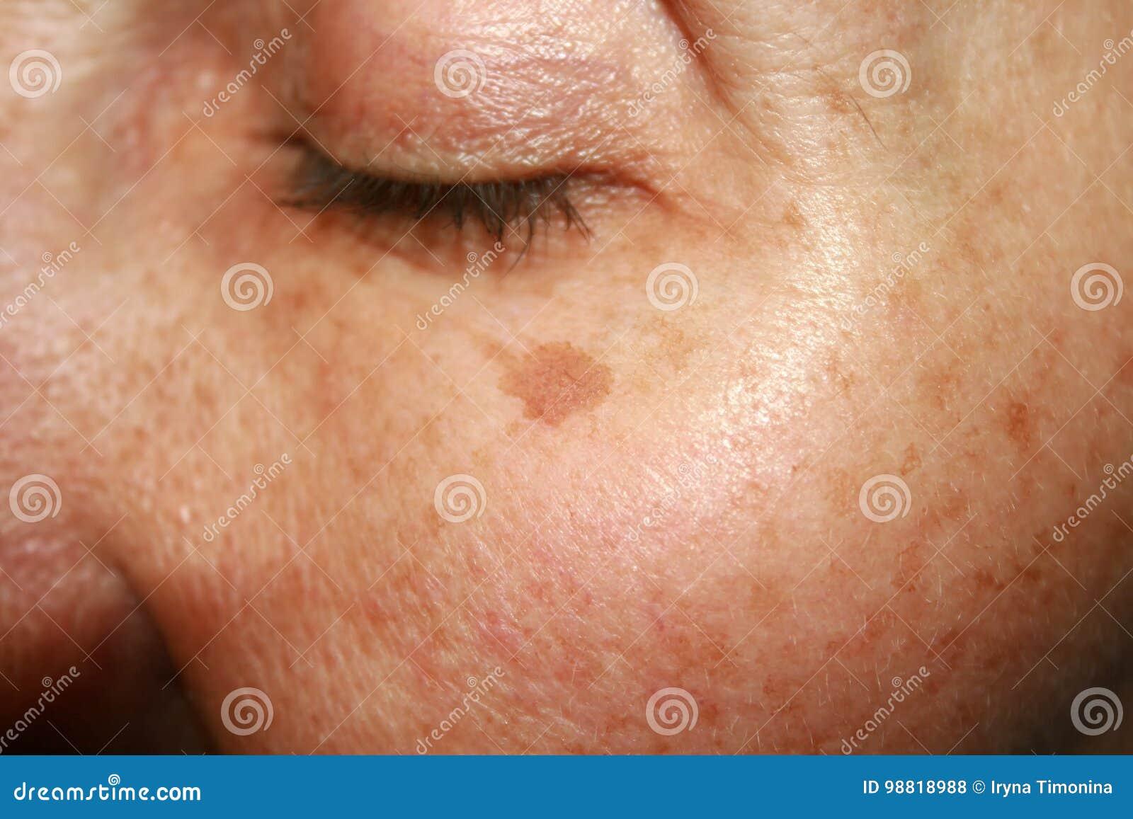 pigmentation de la peau du visage