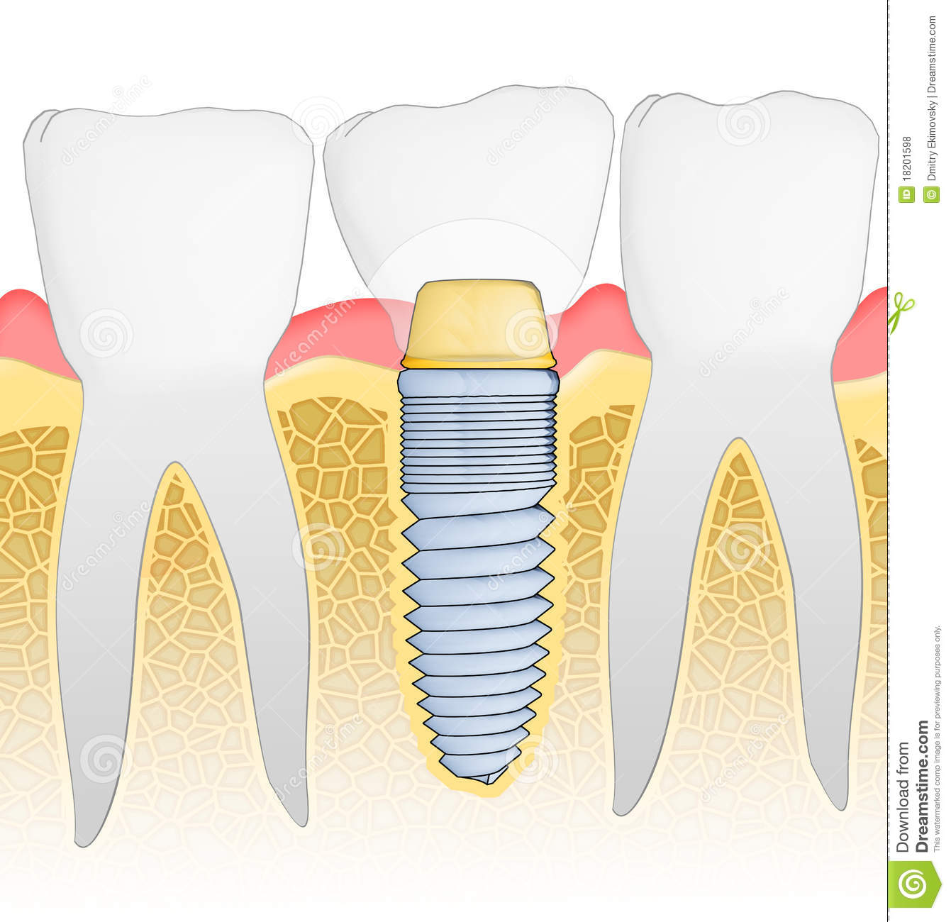 Tand Implant