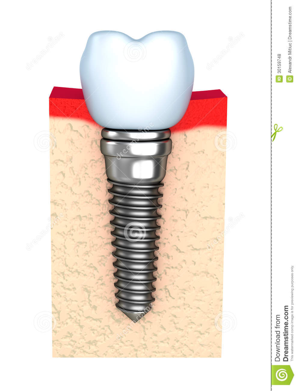 Tand implant in kaakbeen