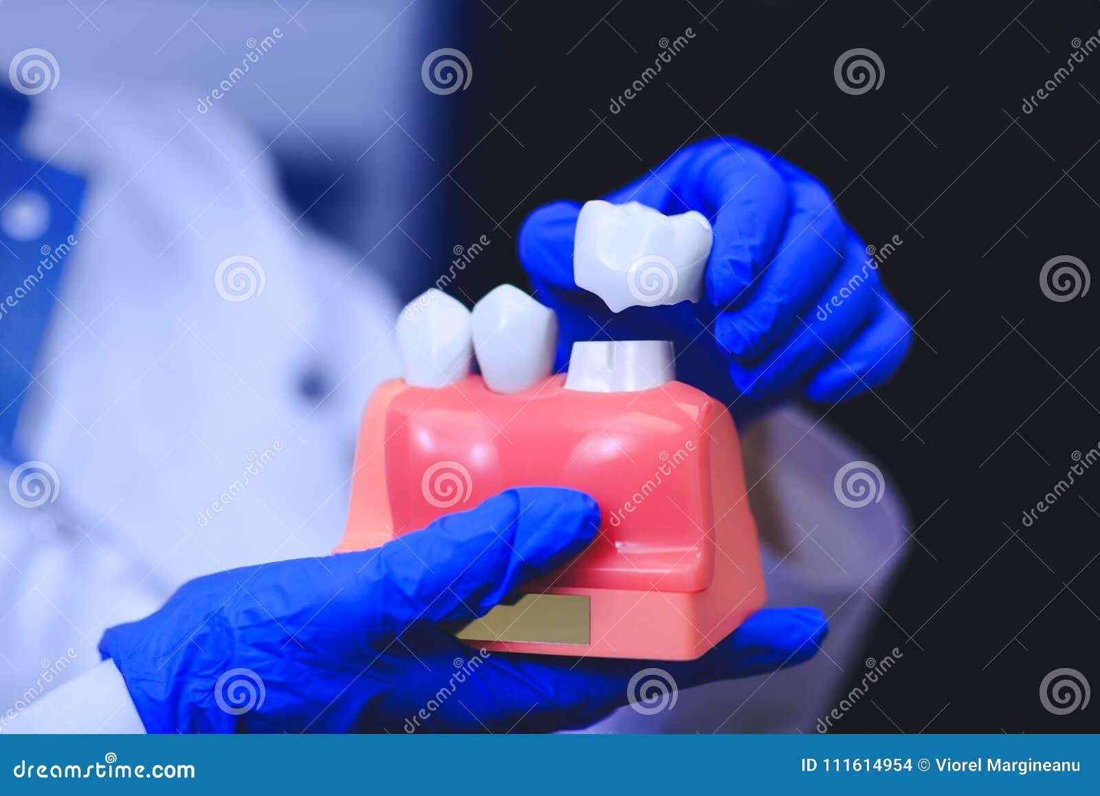 Tand- implantat i händerna av den verkliga doktorn - modell av tänder