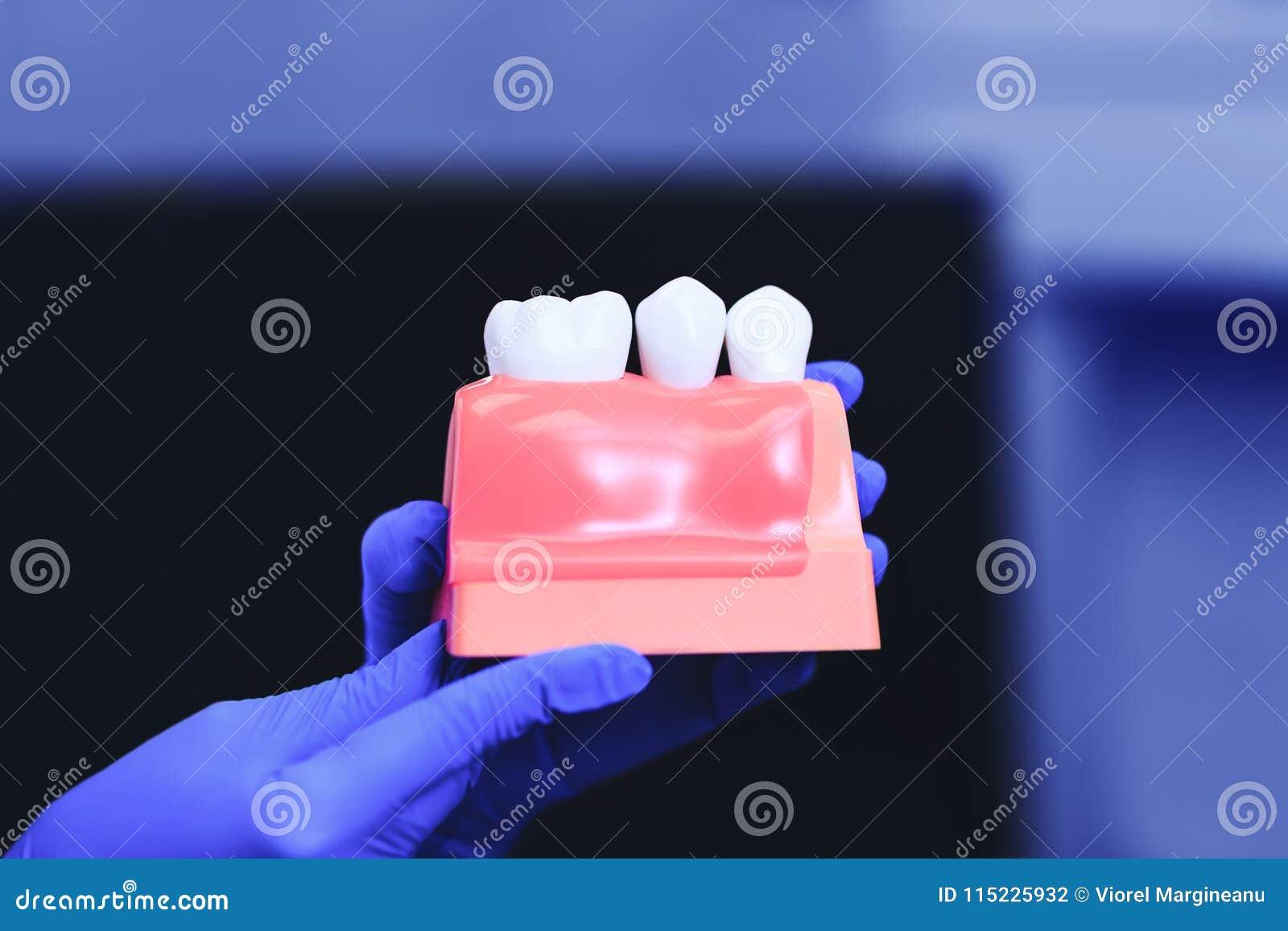 Tand- implantat och tand i händerna av den verkliga doktorn