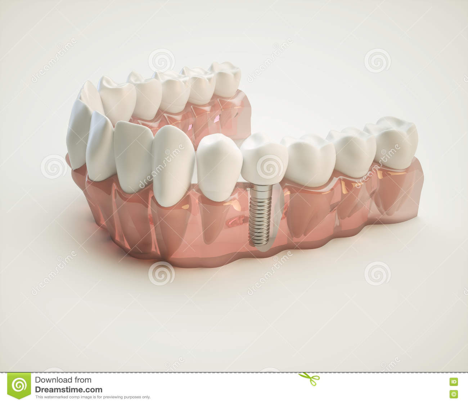 Tand- implantat - tolkning 3d