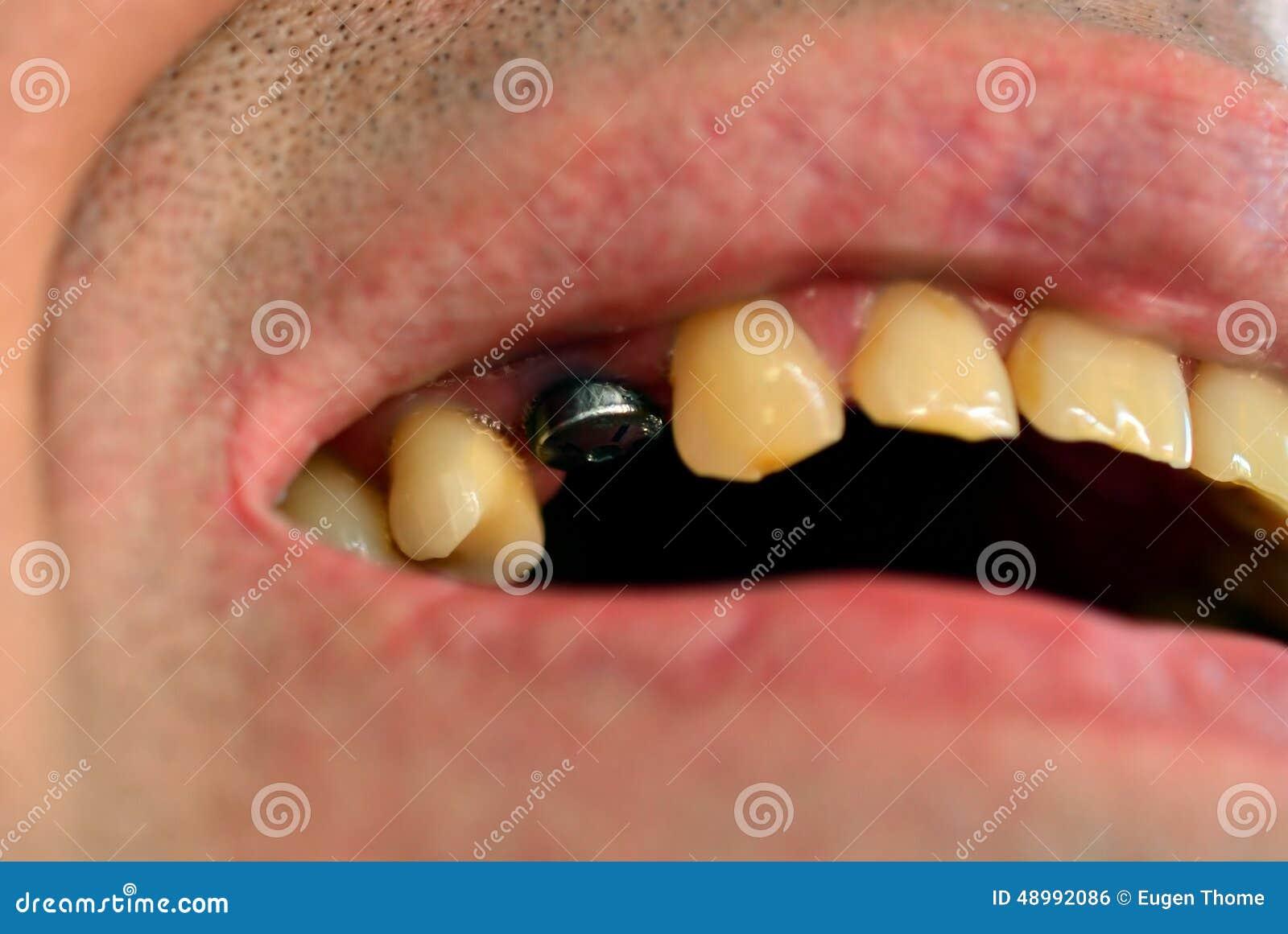 Tand- isolerad siktswhite för element implantat