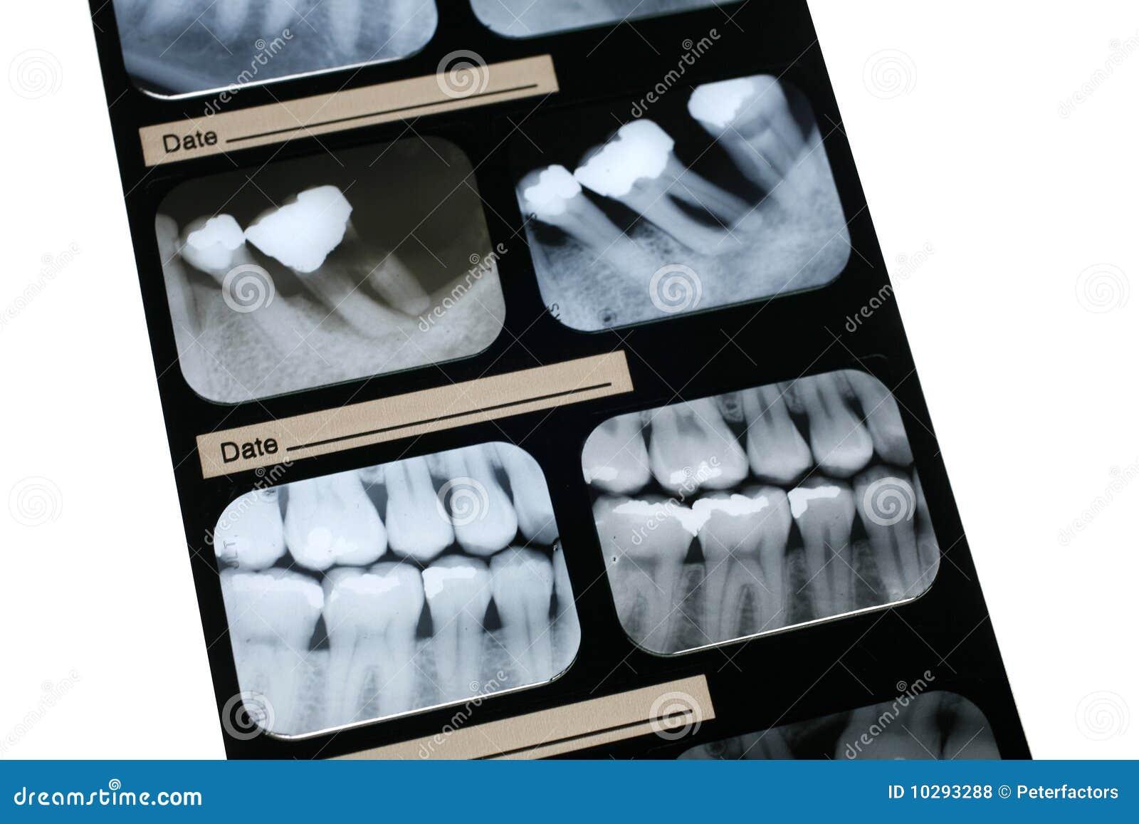 Tand Röntgenstraal