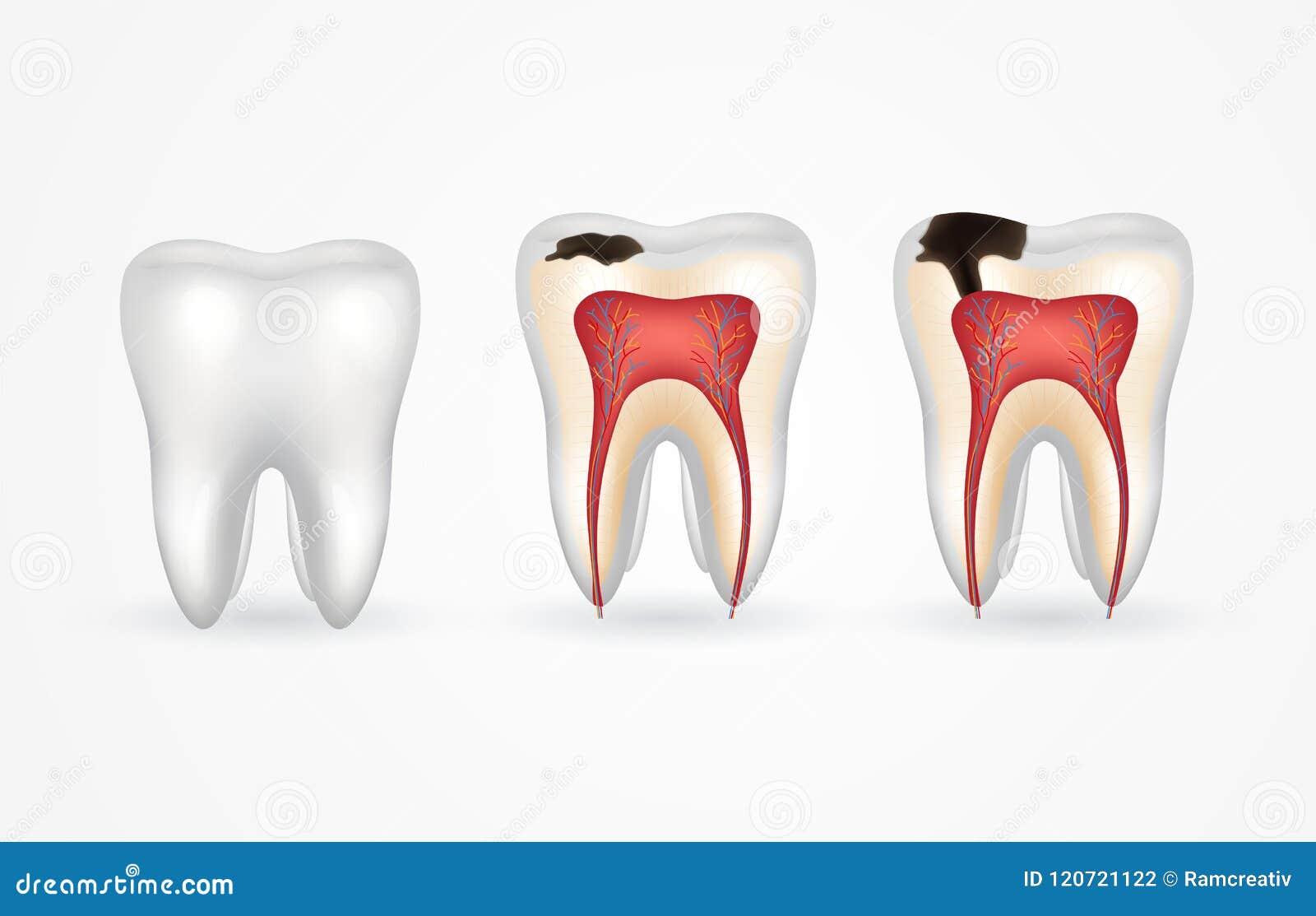 Tandbederf en gezonde tand Oppervlakkig bederf; diep bederf; email en dentinebederf; periodontitis
