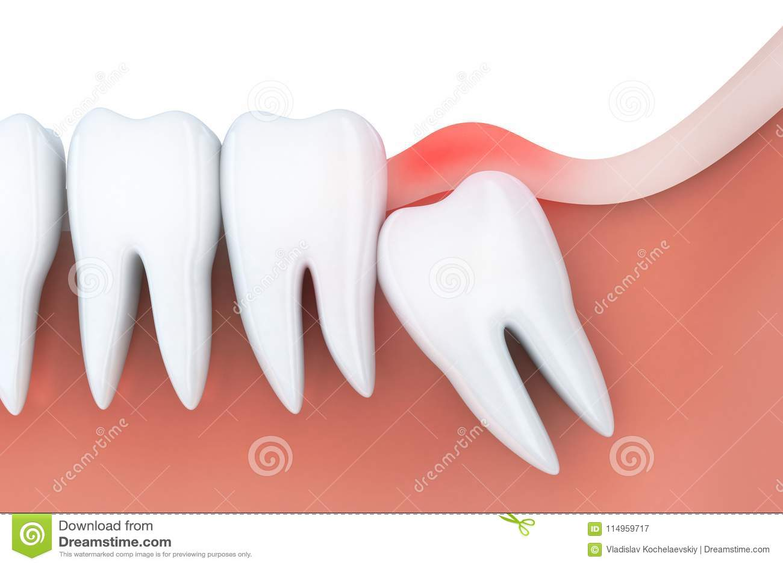 tandpijn in verstandskies stock illustratie illustratie bestaande uit illustratie 114959717. Black Bedroom Furniture Sets. Home Design Ideas