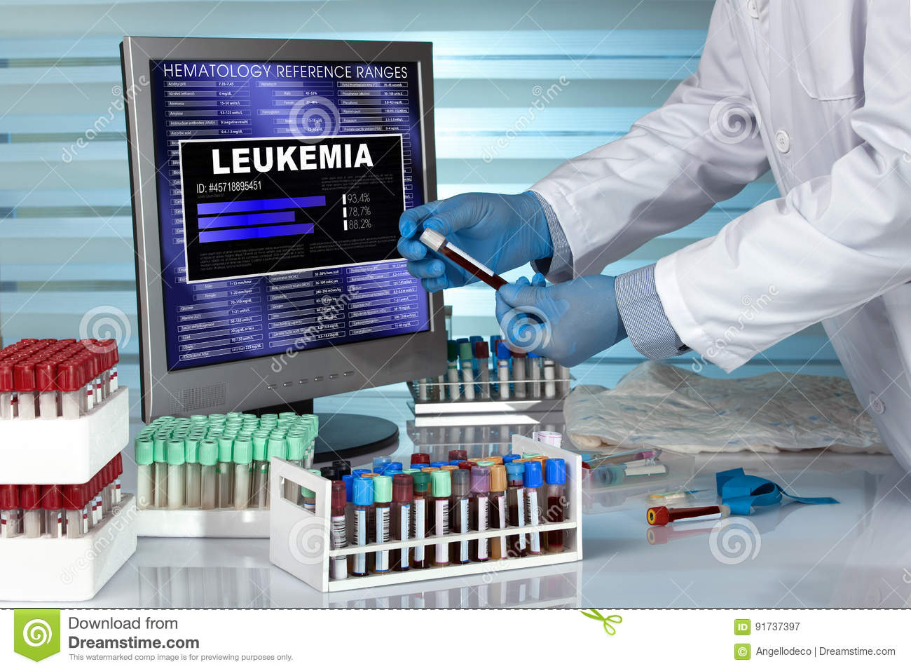 Technician in lab examining blood sample with Leukemia disease r
