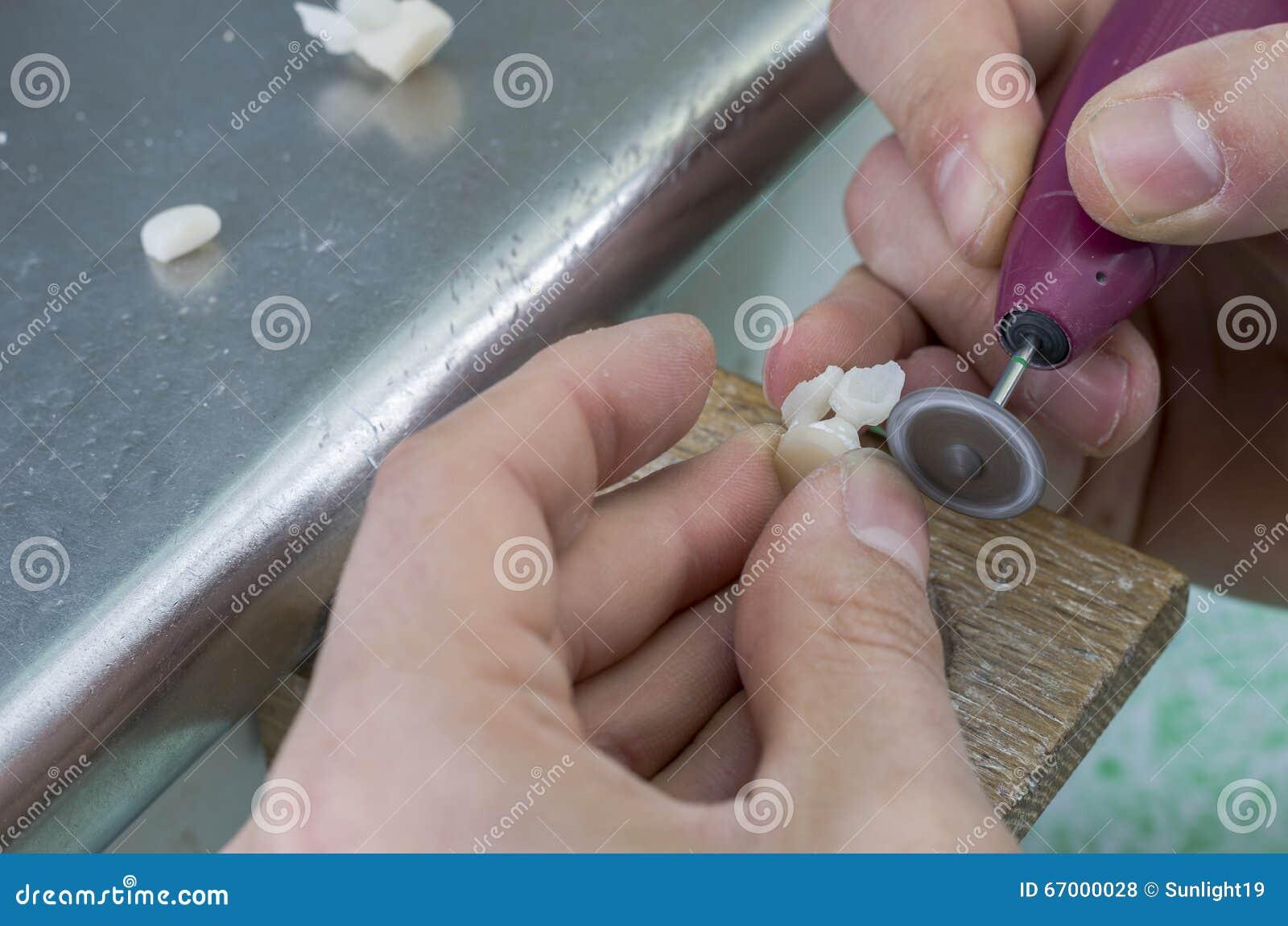 Technicien avec la dent faite dans le disilicate de lithium avec des Di de diamant