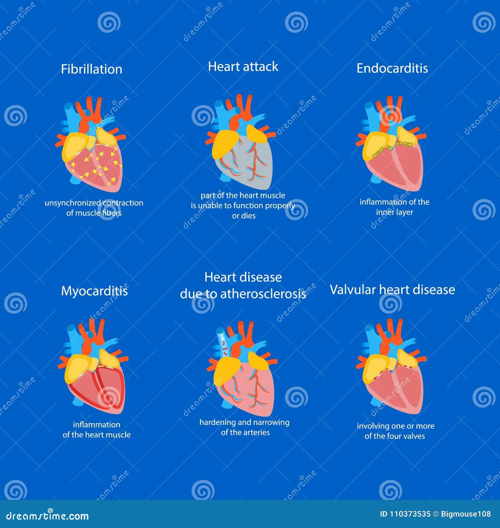 Tecknad filmhjärtsjukdomuppsättning vektor