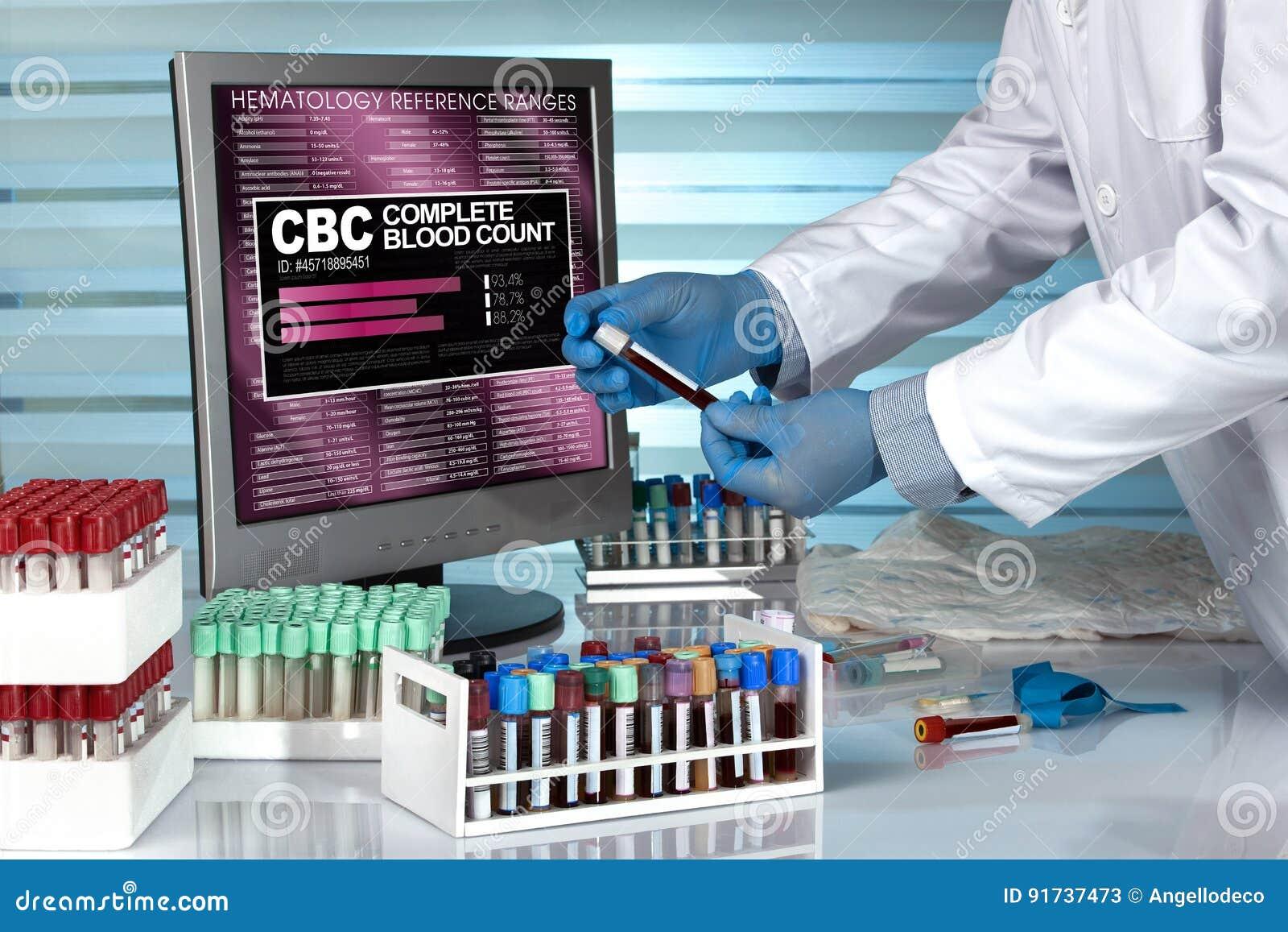 Tecnico nel campione di sangue d esame del laboratorio con il CBC Complet dello schermo