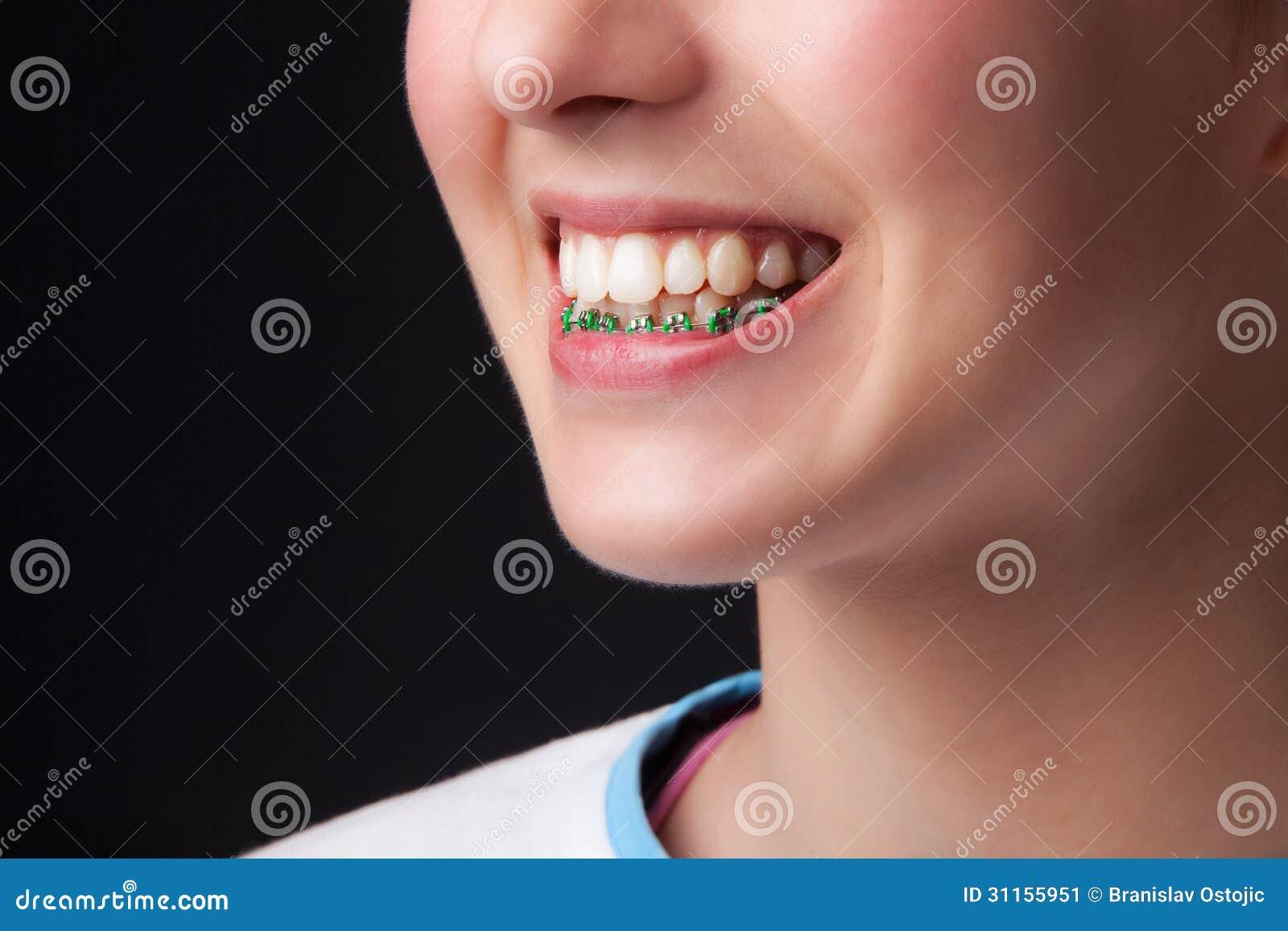 Teen denture stock image. Image of clean, health, closeup