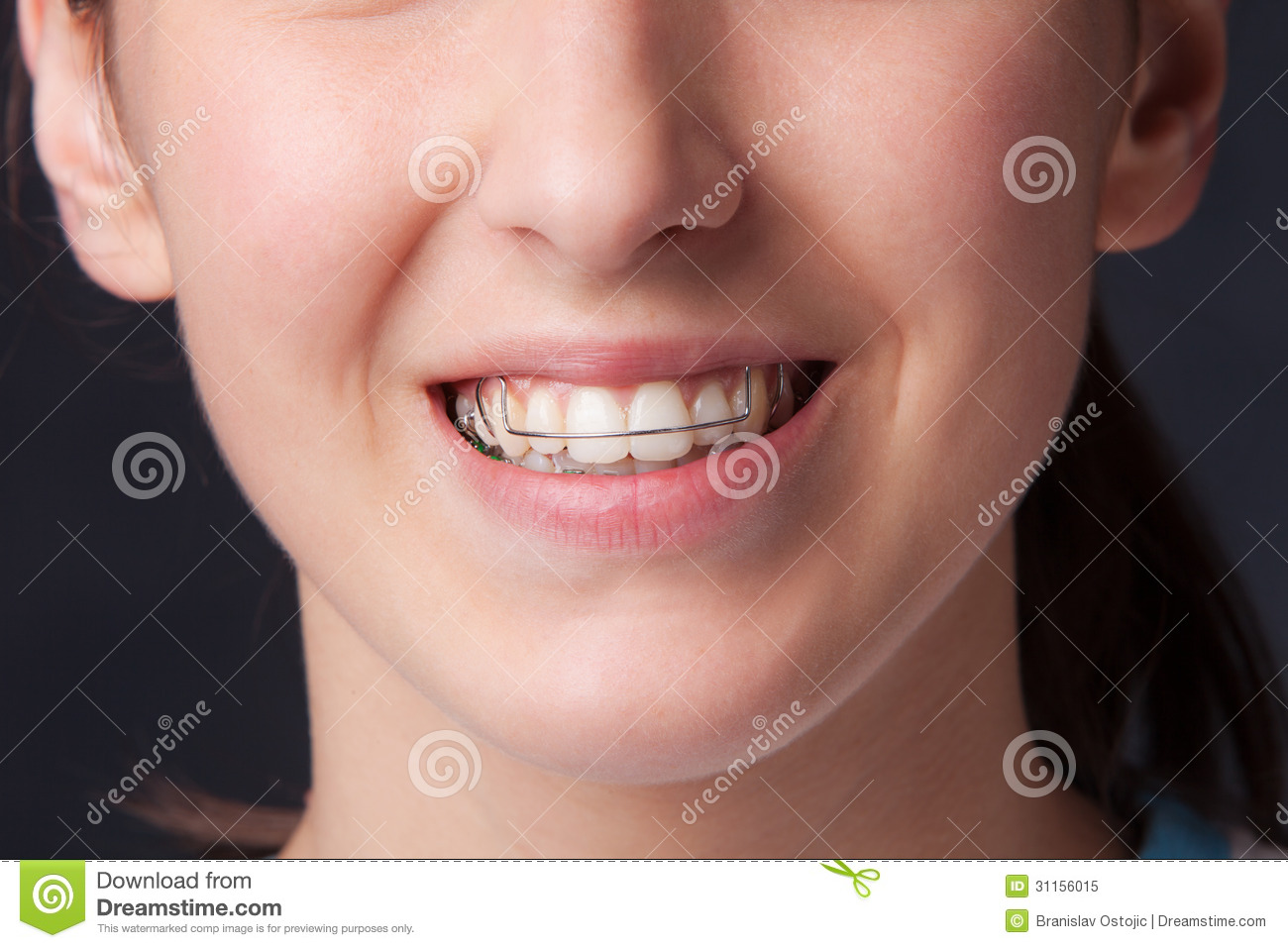 Girls dentures young with Think You