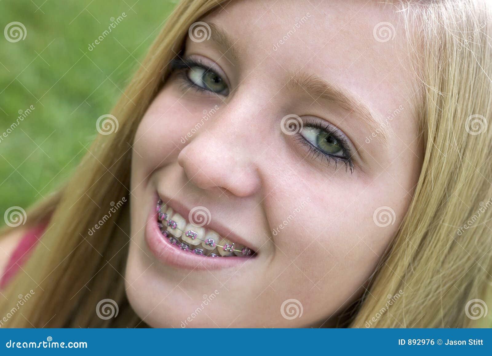 girls with braces sex free
