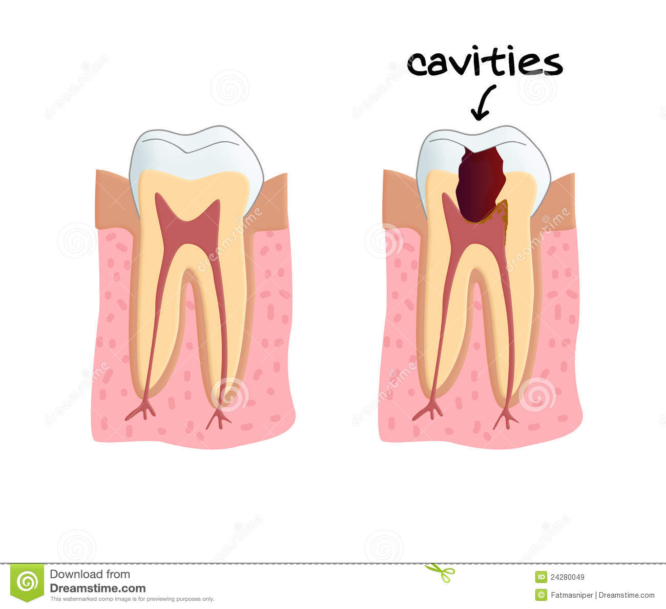 how to know when cavity is caries free