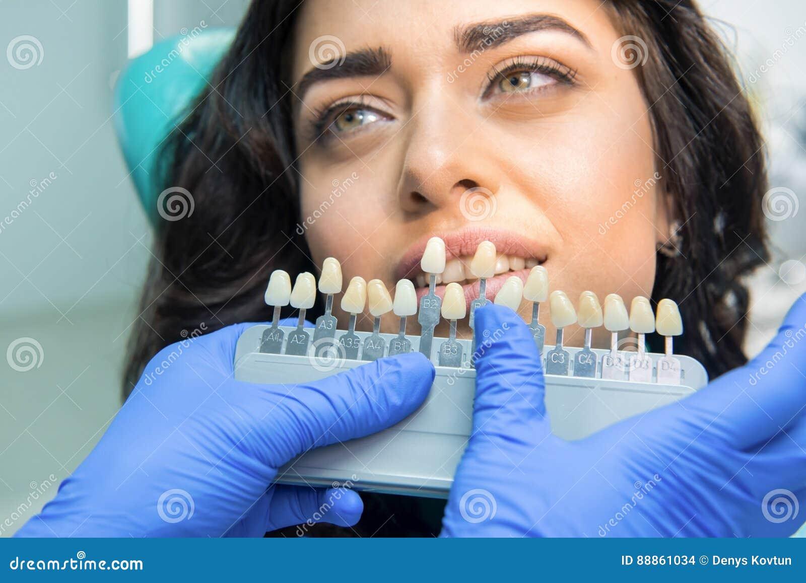 Teeth Color Chart Stock Photo Image Of Hygiene Customer 88861034